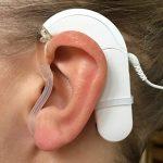 Mejores Accesorios Para Implante Coclear Medel